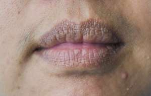 2-innocent-skin-problems-see-dermatologist-chapped-lip